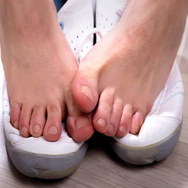 How Antifungal Essential Oils Can Help Alleviate Athlete's Foot